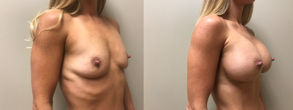Breast Augmentation Patient 42 | Scottsdale Plastic Surgeon