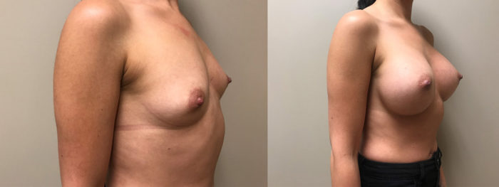 Breast Augmentation Patient 34 | Scottsdale Plastic Surgeon Dr. Shaun Parson