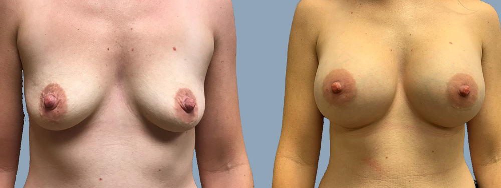 Breast Augmentation Patient 44 | Scottsdale Plastic Surgeon Dr. Parson