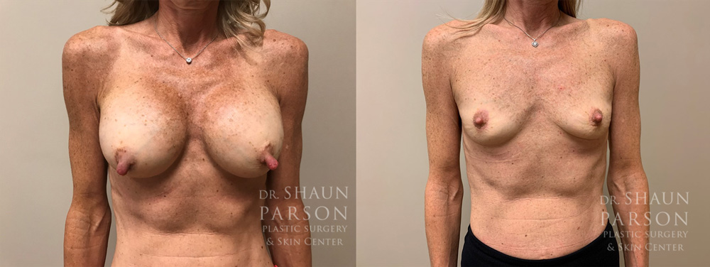 Explant Patient 7 | Scottsdale Plastic Surgeon Dr. Shaun Parson