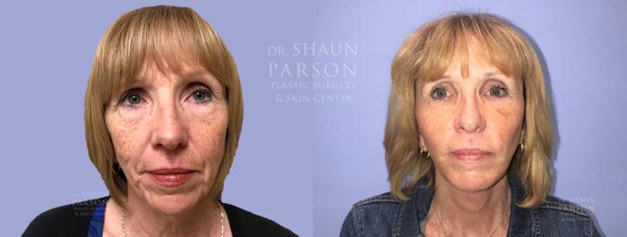 Facelift Patient 21 | Dr Shaun Parson, Scottsdale
