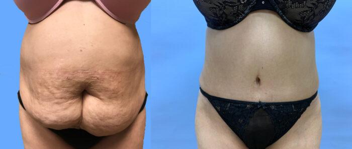 Tummy Tuck Patient 28 | Dr. Shaun Parson Scottsdale, AZ
