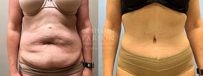 Tummy Tuck Patient 29 | Scottsdale Plastic Surgeon Dr. Parson