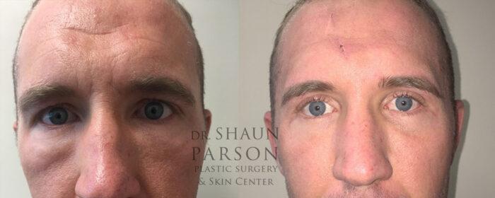 Eyelid Patient 28 | Dr. Shaun Parson, Scottsdale, AZ