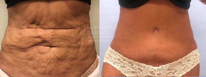 Tummy Tuck Patient 31 | Dr. Shaun Parson, Scottsdale