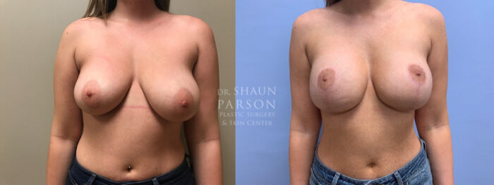 Breast Lift with Augmentation Patient 20 | Dr. Shaun Parson Plastic Surgery, Scottsdale, AZ