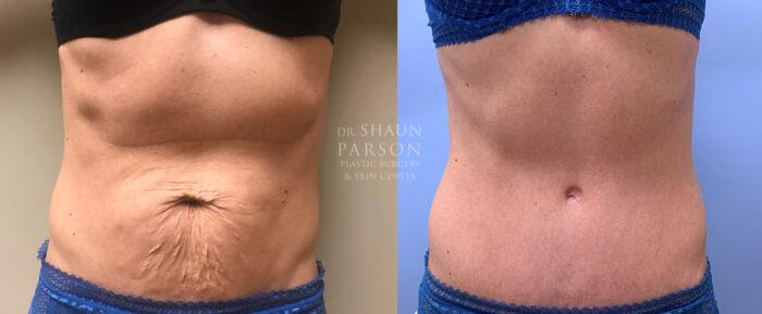 Tummy Tuck Patient 30 | Dr. Shaun Parson | Scottsdale, AZ