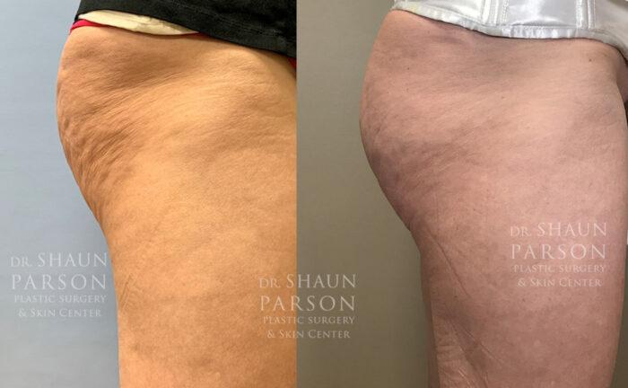 Sculptra Butt Lift | Dr. Shaun Parson, Scottsdale