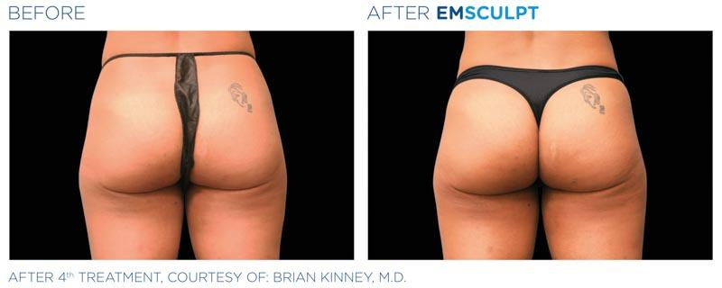 Emsculpt Body Toning | Dr. Shaun Parson, Scottsdale