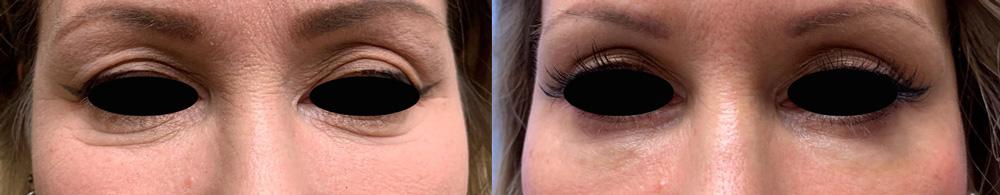 Eyelid Surgery Patient 29 | Scottsdale Plastic Surgeon