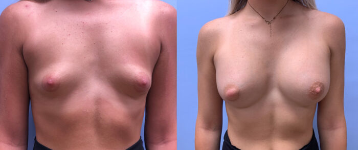 Breast Augmentation Patient 45 | Scottsdale Plastic Surgeon, Dr. Shaun Parson