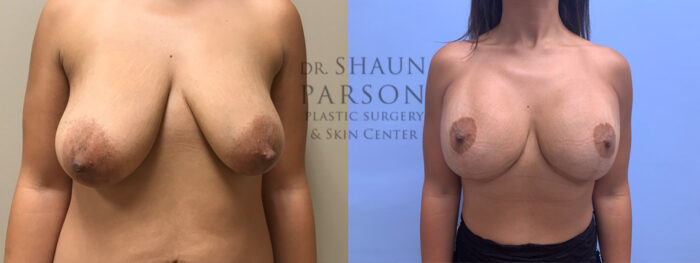 Breast Lift with Augmentation Patient 21 | Scottsdale Plastic Surgeon