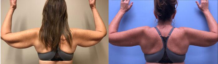 Arm Lift Patient 3 | Dr. Shaun Parson Scottsdale, AZ