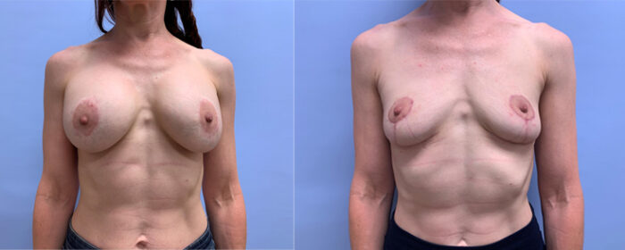 Breast Explant Patient 8 | Dr. Shaun Parson Plastic Surgery