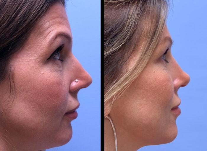 Rhinoplasty Scottsdale | Dr. Shaun Parson Plastic Surgery