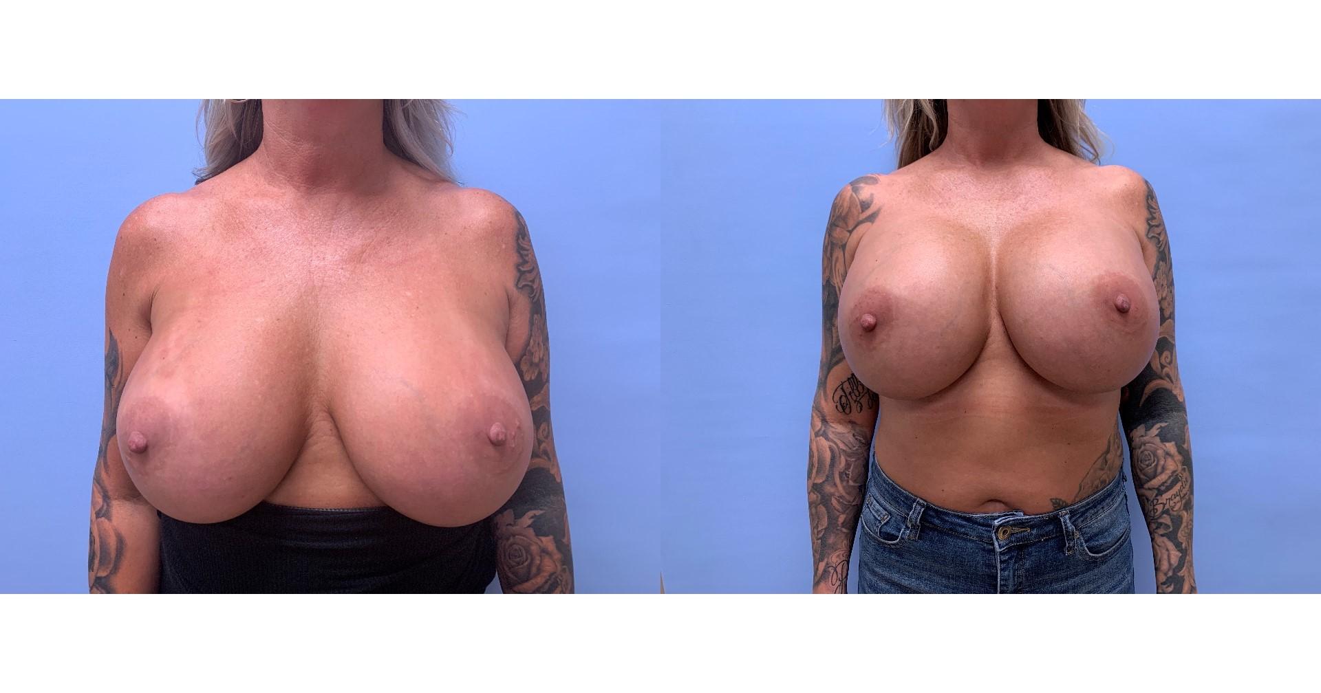 Breast Revision Patient 15   Dr. Shaun Parson Plastic Surgery, Scottsdale