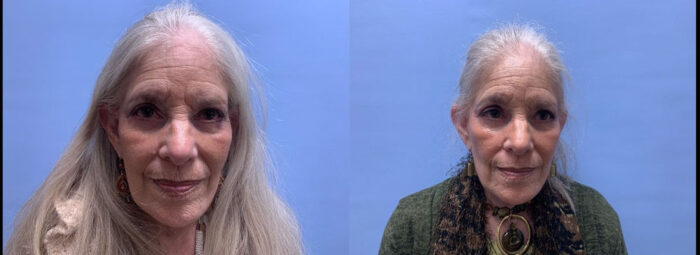 Eye Lid Patient 30 | Scottsdale Plastic Surgeon