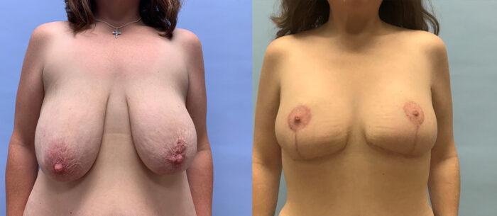 Breast Lift Patient 19 | Scottsdale Plastic Surgeon