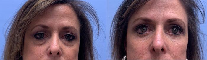 Eyelid Surgery Patient 31 | Scottsdale Plastic Surgeon, Dr. Parson