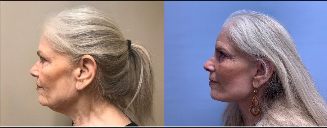 Neck Lift Patient 22 | Scottsdale Plastic Surgeon