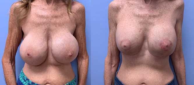 Breast Revision Patient 16 | Dr. Shaun Parson Plastic Surgery