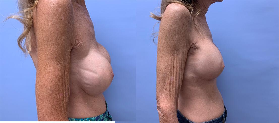 Breast Revision Patient 16 | Dr. Shaun Parson Plastic Surgery