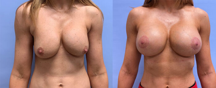 Breast Revision Patient 17 | Scottsdale Plastic Surgeon, AZ