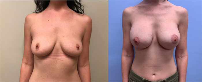 Peri-Areolar Lift with Augmentation | Dr. Shaun Parson Plastic Surgery