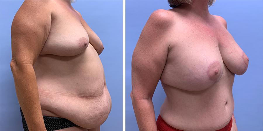 Mommy Makeover Patient 10 | Dr. Shaun Parson Plastic Surgery