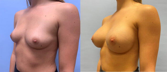 Breast Augmentation Patient 46 | Dr. Shaun Parson Scottsdale, AZ