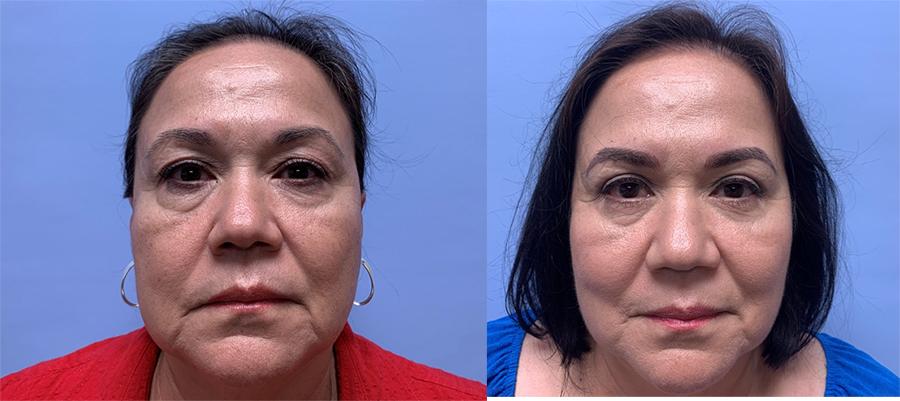 Eyelid Surgery Patient 32 | Scottsdale Plastic Surgeon Dr. Parson
