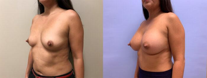 Breast Augmentation Patient 47 | Dr. Shaun Parson Scottsdale, AZ