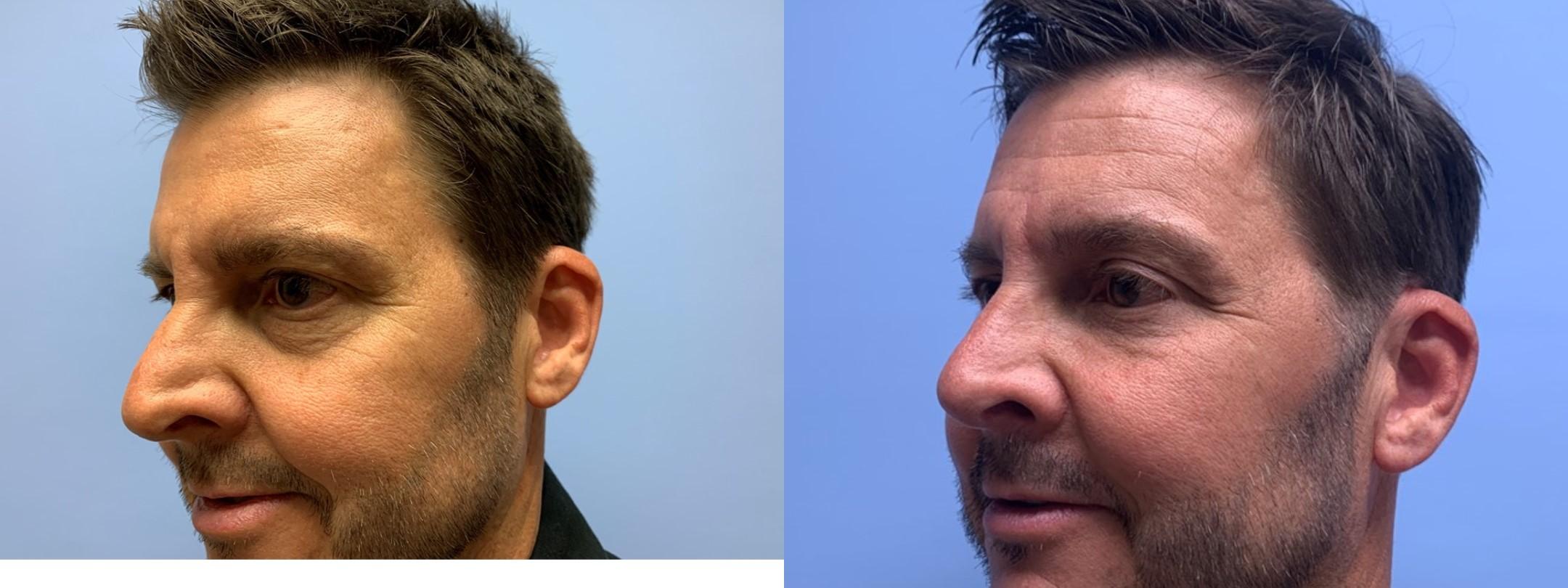 Eyelid Surgery Patient 33 | Dr. Shaun Parson Plastic Surgery, Scottsdale