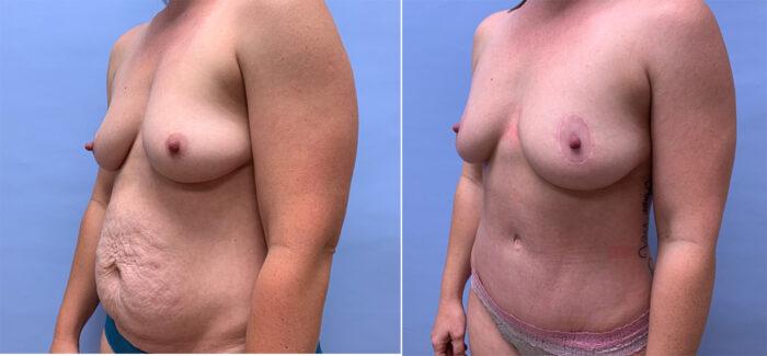 Tummy Tuck Patient 33 | Scottsdale Plastic Surgeon, Dr. Shaun Parson