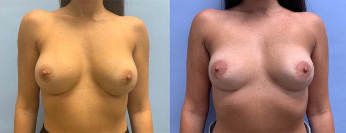 Explant Patient 12 | Dr. Shaun Parson Plastic Surgery