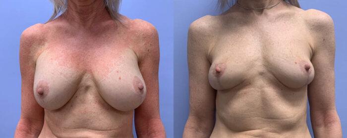 Breast Explant Patient 11 | Scottsdale Plastic Surgeon, Dr. Shaun Parson