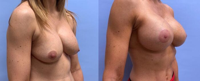 Breast Lift with Peri-Areolar Augmentation Patient 35