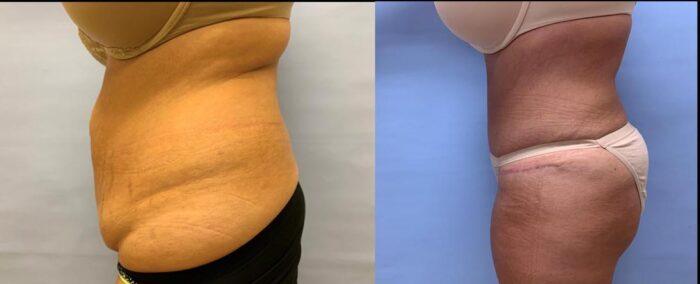 Tummy Tuck Patient 34 | Scottsdale Plastic Surgeon, Dr. Shaun Parson