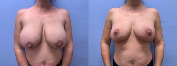 Explant Patient 13 | Dr. Shaun Parson Plastic Surgery