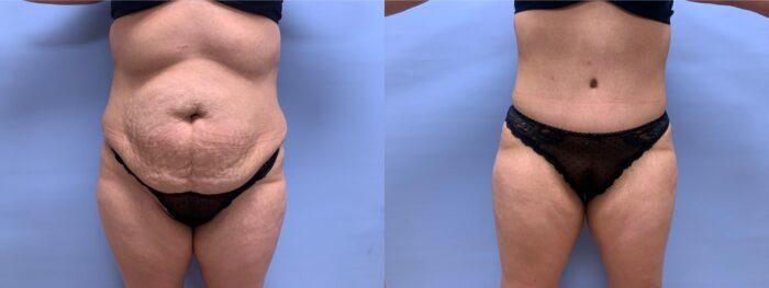 Tummy Tuck Patient 35 | Scottsdale Plastic Surgeon, Dr. Shaun Parson