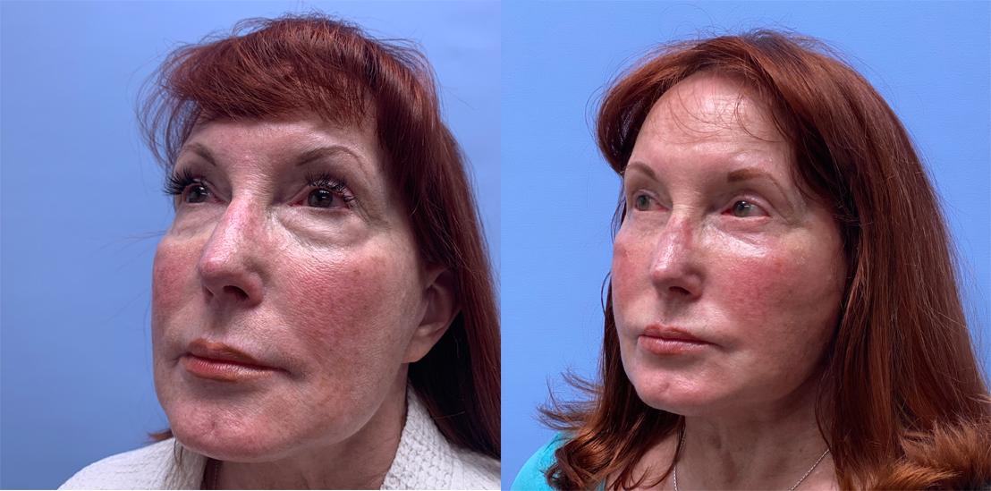 Facelift Patient 23