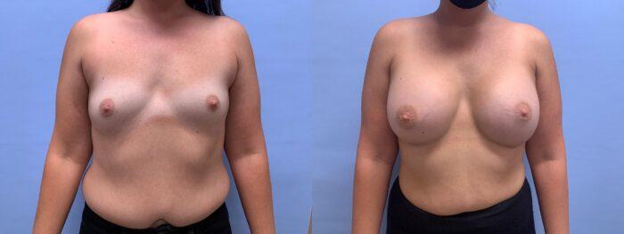 Breast Augmentation Patient 50 | Dr. Shaun Parson Scottsdale, AZ