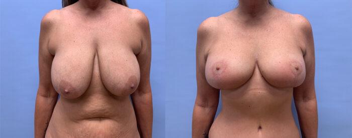 Breast Lift Patient 20 | Dr. Shaun Parson Scottsdale, AZ