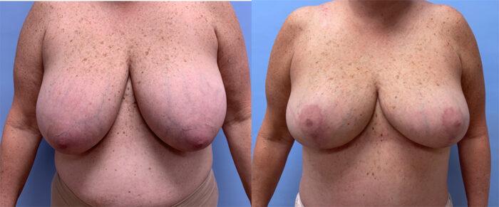Breast Lift Patient 21 | Dr. Shaun Parson Plastic Surgery, Scottsdale