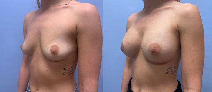 Breast Augmentation Patient 55 | Dr. Shaun Parson Scottsdale, AZ