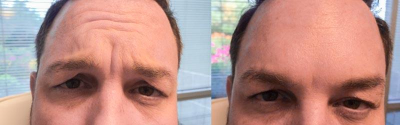 Botox | Dr. Shaun Parson Plastic Surgery and Skin Center | Scottsdale, Arizona