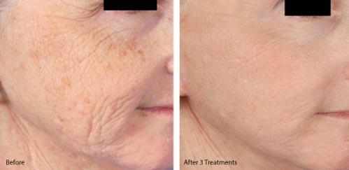 Microneedling | Dr. Shaun Parson Plastic Surgery and Skin Center | Scottsdale, Arizona