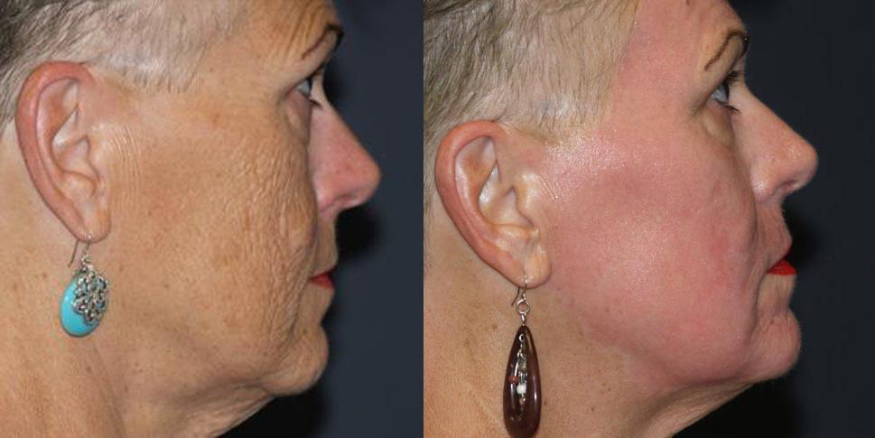 Laser Resurfacing | Dr. Shaun Parson Plastic Surgery and Skin Center | Scottsdale, Arizona