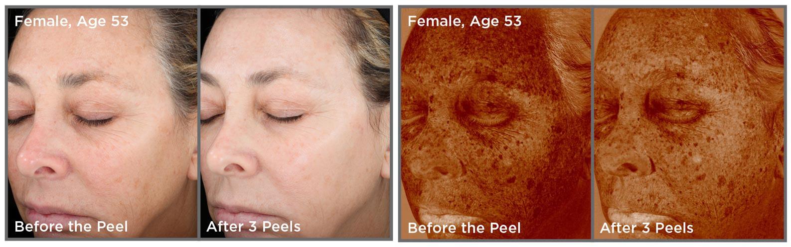Vitalize Peel | Dr. Shaun Parson Plastic Surgery and Skin Center | Scottsdale, Arizona