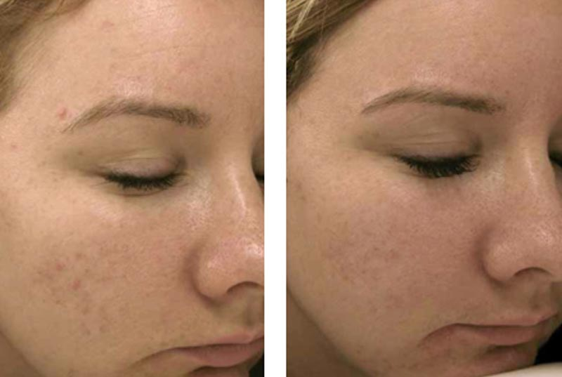 Skin Care Products | Dr. Shaun Parson Plastic Surgery and Skin Center | Scottsdale, Arizona